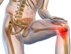 Артроз артрит и другие патологии суставов