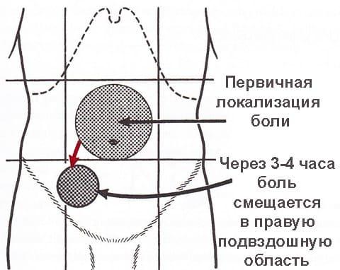 вырезали аппендицит девочке: