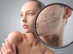 Признаки сухой кожи на лице