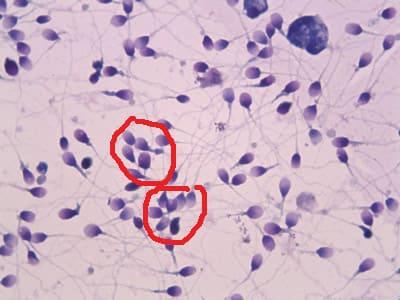 Агглютинация и агрегация сперматозоидов