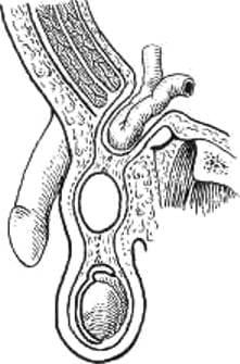 Киста семенного канатика (фуникулоцеле)