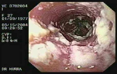 Кандидоз при беременности