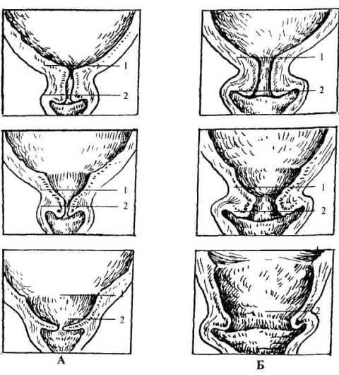 Раскрытие, укорочение шейки матки при беременности