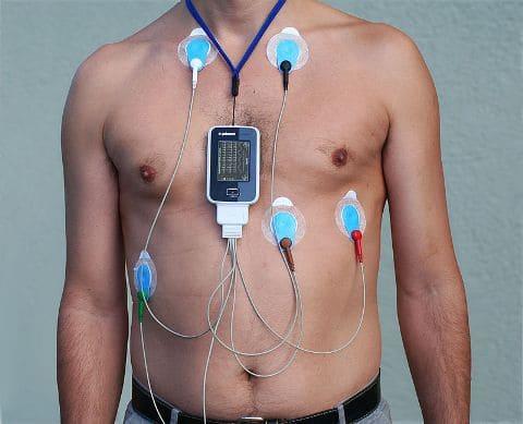 Изображение - Холтер артериального давления shm03