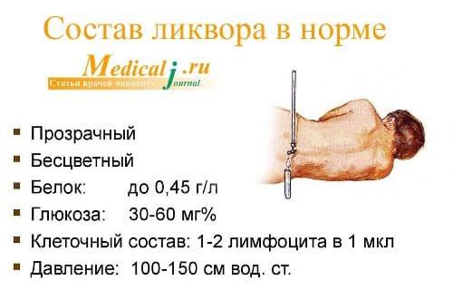Анализ ликвора (Спинномозговой жидкости) - cимптомы и лечение ...