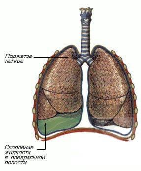 Схематическое изображение правостороннего экссудативного плеврита