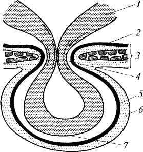 Схематическое изображение основных элементов грыжи