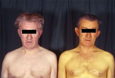 Желтушность кожных покровов при синдроме Жильбера