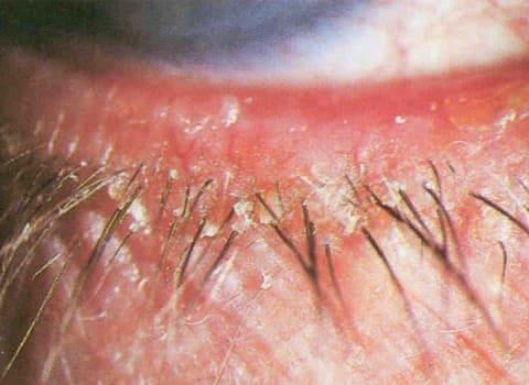 Симптомы чешуйчатого (себорейного) блефарита