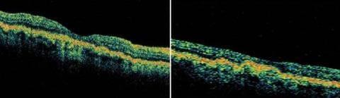 Друзы диска зрительного нерва на ОКТ