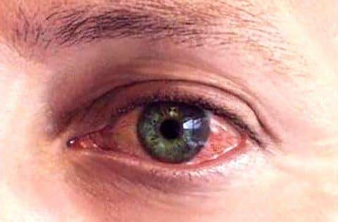 Герпес глаз - cимптомы и лечение. Журнал Медикал