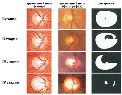 Глаукома - cимптомы и лечение. Журнал Медикал