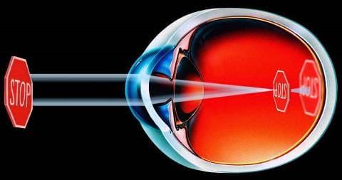 Зрение при миопии