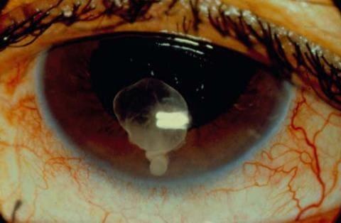 Цистицеркоз, поражение глаза