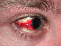 Кровоизлияние в склеры