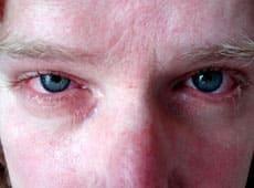 Гонококковое поражение глаз
