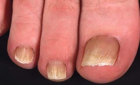 Грибок ногтей рук, ног (онихомикозы) - cимптомы и лечение