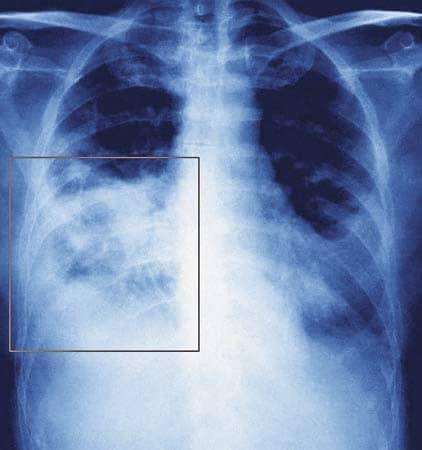 Свиной грипп А(H1N1)