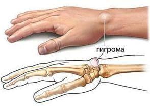 Гигрому сустава остеоартроз плечевого сустава армия