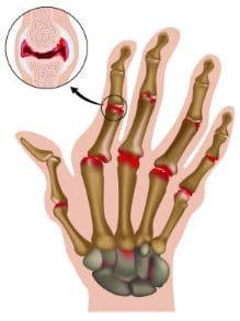 Излюбленная локализация воспаления на кисти при ревматоидном артрите