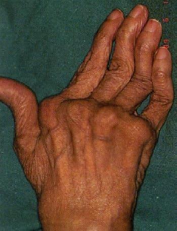Деформация суставов кисти при ревматоидном артрите