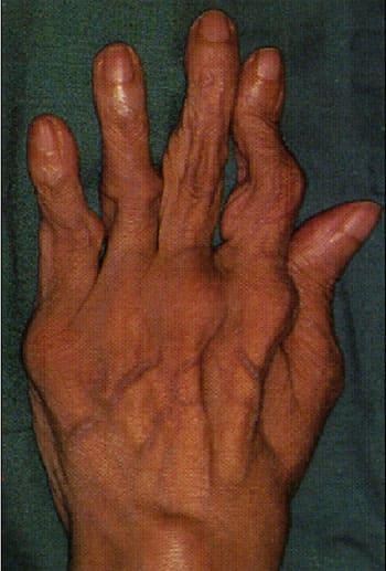 Очищение суставов при ревматоидном артрите болят суставы пальцев у беременных