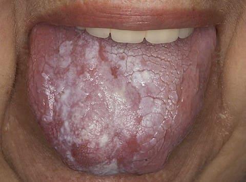 Симптомы красного плоского лишая
