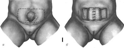 Экстрофия мочевого пузыря лечение 2