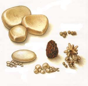 Камни в мочевом пузыре и мочеточнике