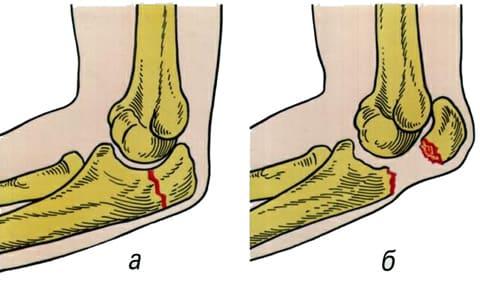 Перелом суставной чашечки лучевой кости санаторий лечение артроза суставов