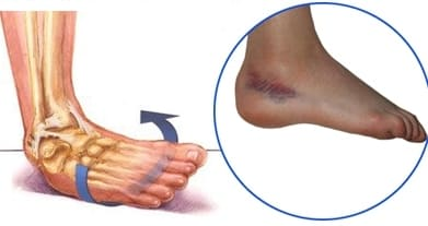 Растяжение связок сустава руки оперативное лечение артроза коленных суставов