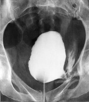 Травмы органов мочевыделительной системы (почек, мочевого пузыря, уретры)