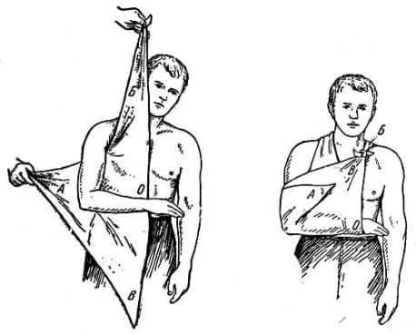 Первая помощь при переломах локтевого сустава растяжение суставов колена