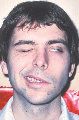 Невропатия лицевого нерва (паралич Белла, прозоплегия)