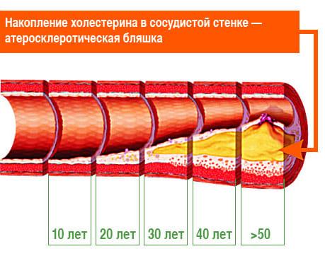 Накопление холестерина