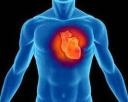 Что такое атеросклероз венечных сосудов сердца