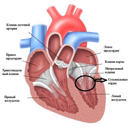 Дополнительная хорда в сердце