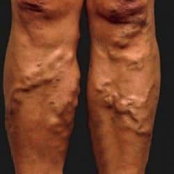 Варикозные вены на ногах. Симптомы варикозной болезни