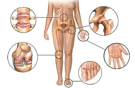 Восполение тканей вокруг суставов лечение фасеточные суставы шейного отдела позвоночника