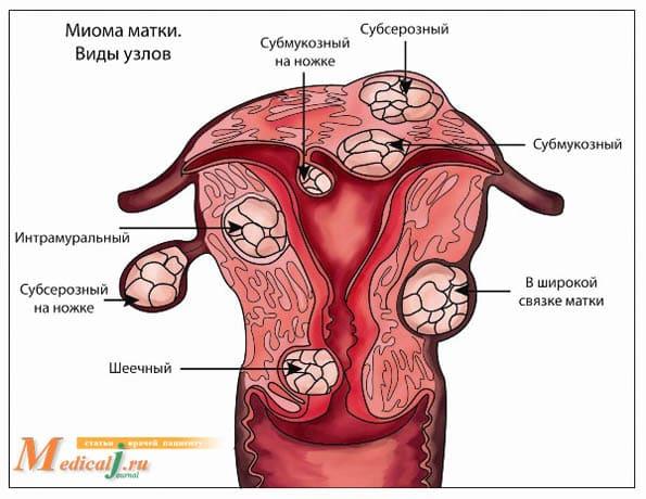 Три вида расположения миоматозных узлов
