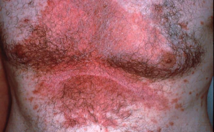 Выпадение волос при себорейном дерматите фото
