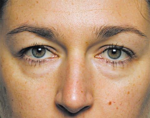 Мешки под глазами - cимптомы и лечение. Журнал Медикал