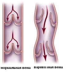 причина отеков - варикозное расширение вен нижних конечностей