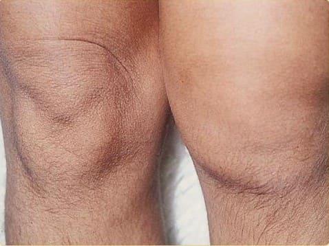 Отек мягких тканей при артрите