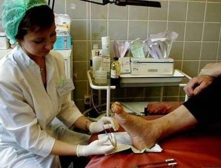 Хирургическое удаление отмерших тканей в области раны при диабетической стопе