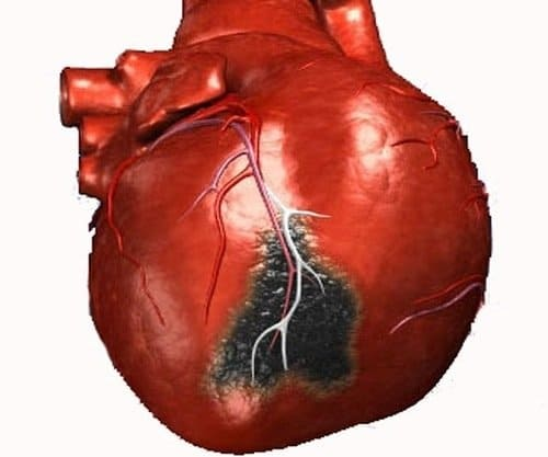 Первые признаки инфаркта миокарда