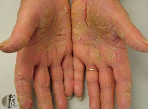 Псориаз и т клеточная лимфома - Псориаз. Лечение