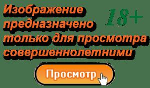Цервицит и эндоцервицит 2