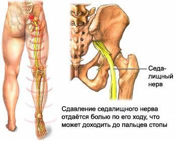 Когда болит спина в области поясницы справа и отдает в ногу